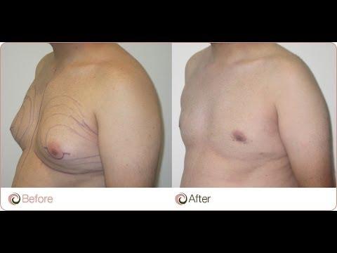 comment perdre la gynécomastie de la graisse thoracique examen des sucettes de perte de poids power pops
