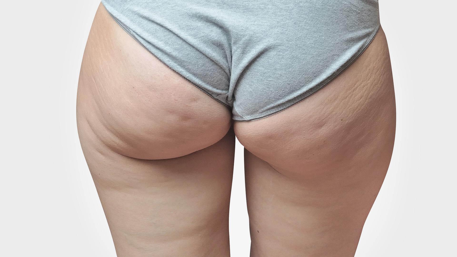 Comment perdre de la poitrine rapidement ? - communaute-hrf.fr