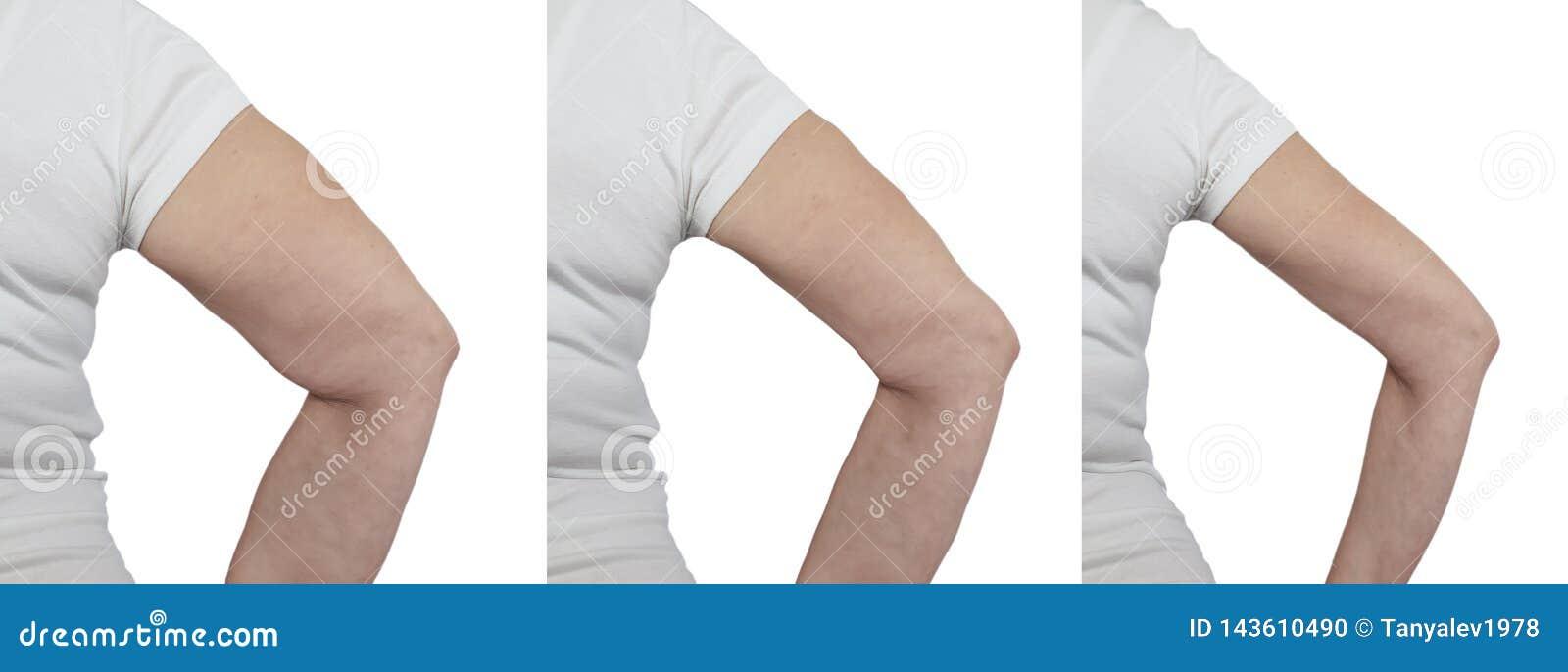 perte de poids dans les bras avant et après perte de poids t1dm