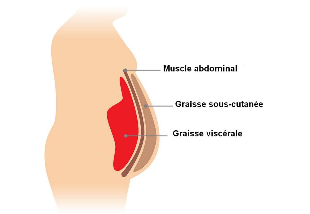 graisse abdominale sous-cutanée comment la perdre