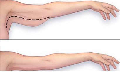 difficile de perdre la graisse du bras