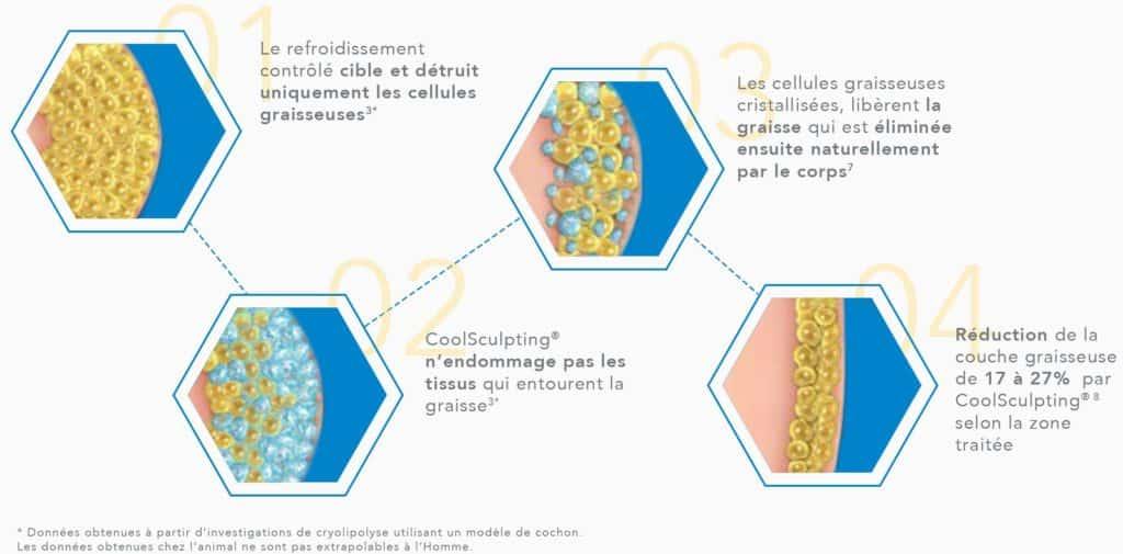 le coolculpting élimine-t-il les cellules graisseuses cicatrices dacné de perte de poids