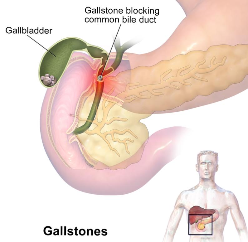 la cholécystite entraîne-t-elle une perte de poids