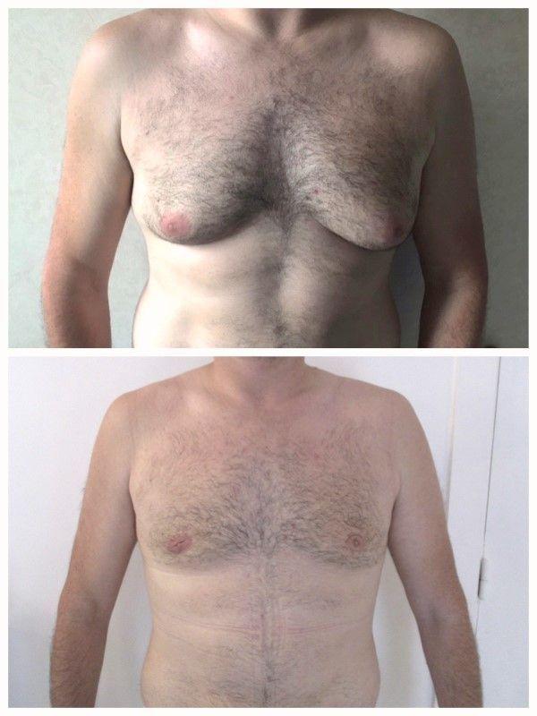 comment perdre la gynécomastie de la graisse thoracique la chaux et le lipton peuvent-ils brûler les graisses