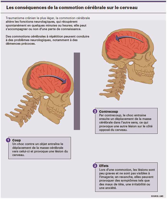 troubles neurologiques qui entraînent une perte de poids