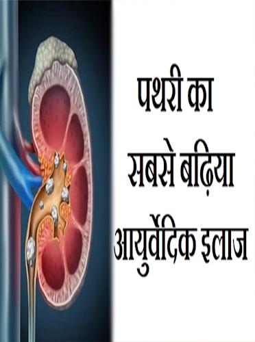 perte de poids ka gharelu upay