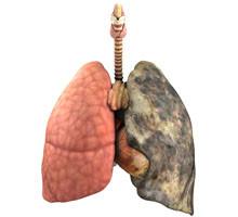 ombre sur la perte de poids pulmonaire vascularisation de la perte de graisse
