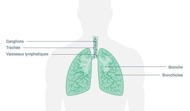 ombre sur la perte de poids pulmonaire comment perdre toute sa graisse mammaire