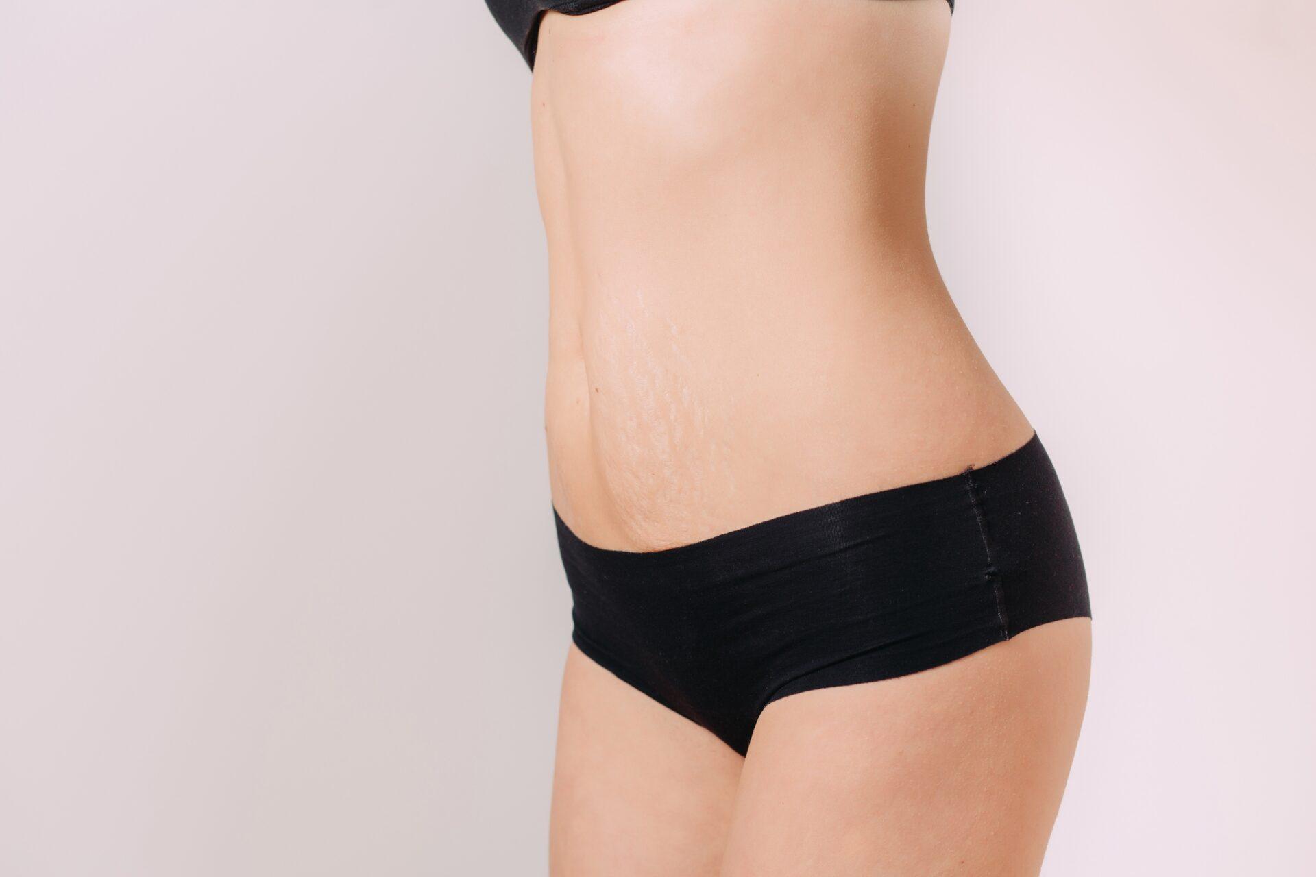 une femme enceinte peut-elle perdre de la graisse