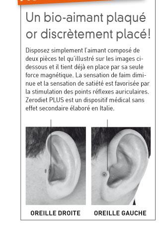 Aimants d'oreilles auriculothérapie pour perdre du poids | communaute-hrf.fr