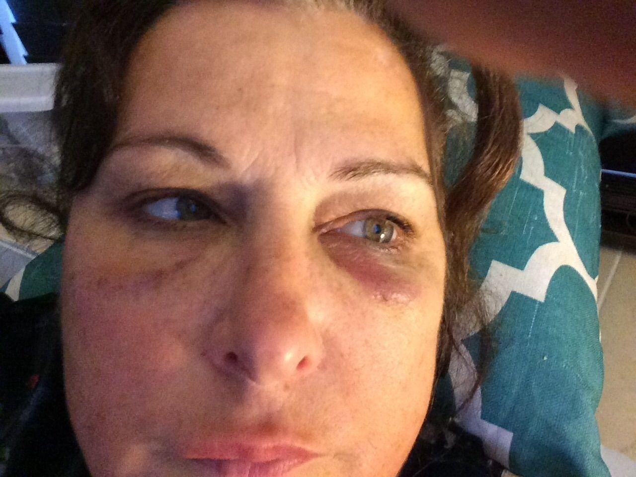 Le thermage provoque-t-il une perte de graisse faciale