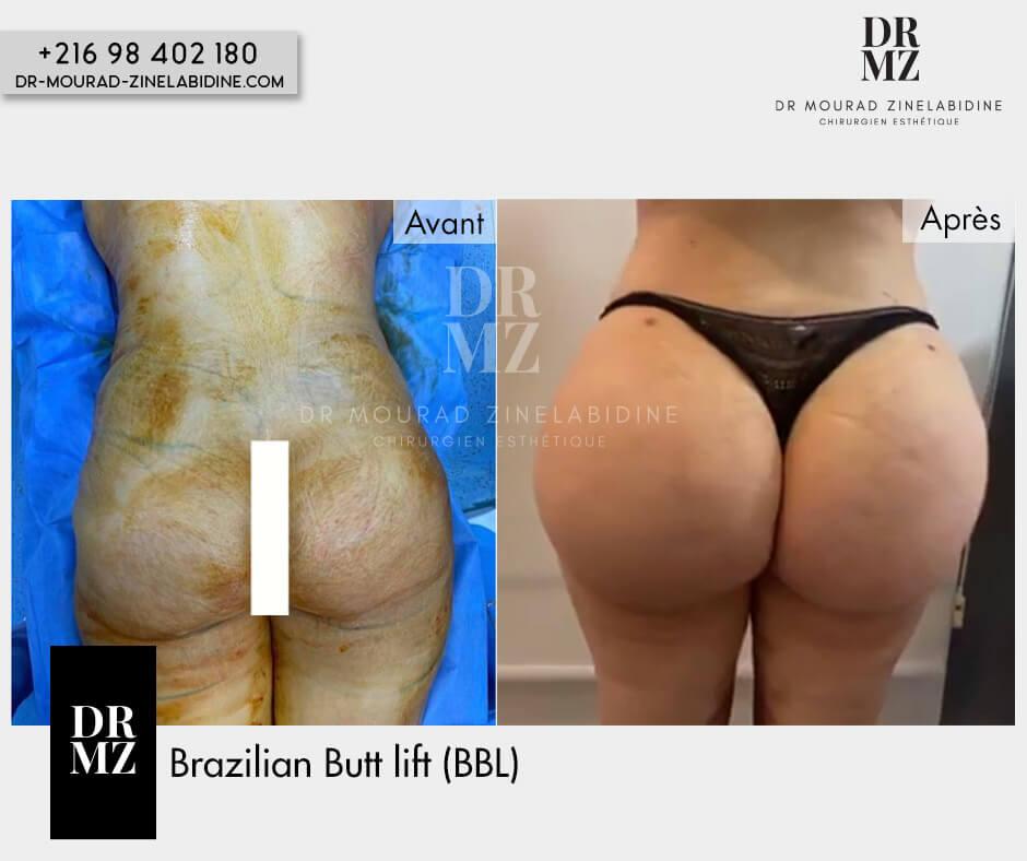 des repas qui aident à perdre du poids rapidement défi de perte de poids columbia sc