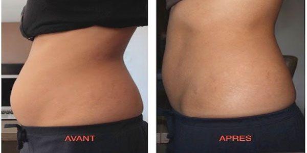 le zinc brûle-t-il la graisse du ventre peux-tu perdre du poids en 3 mois