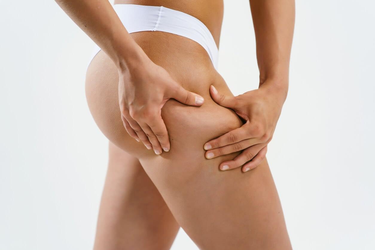 la perte de poids aggrave-t-elle la cellulite