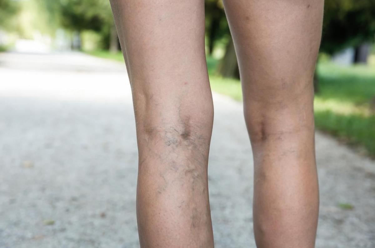 la perte de poids peut-elle causer des varicosités