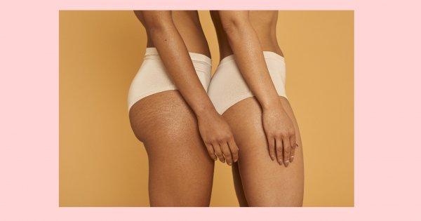 acouphènes et perte de poids trop de graisse pour perdre du poids