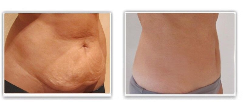 comment perdre la graisse du ventre tablier