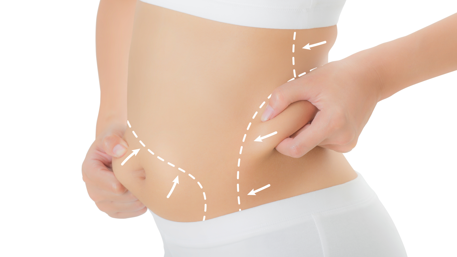cryolipolyse de perte de poids