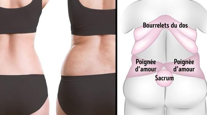 enlever la graisse de votre dos