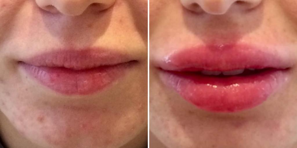 les lèvres perdent du poids dose de perte de poids de liraglutide