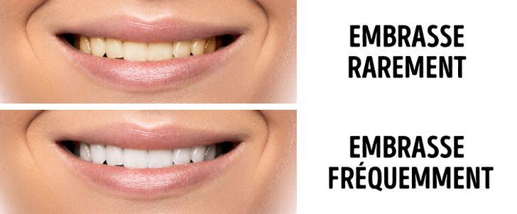 les lèvres perdent du poids enveloppement pour brûler les graisses