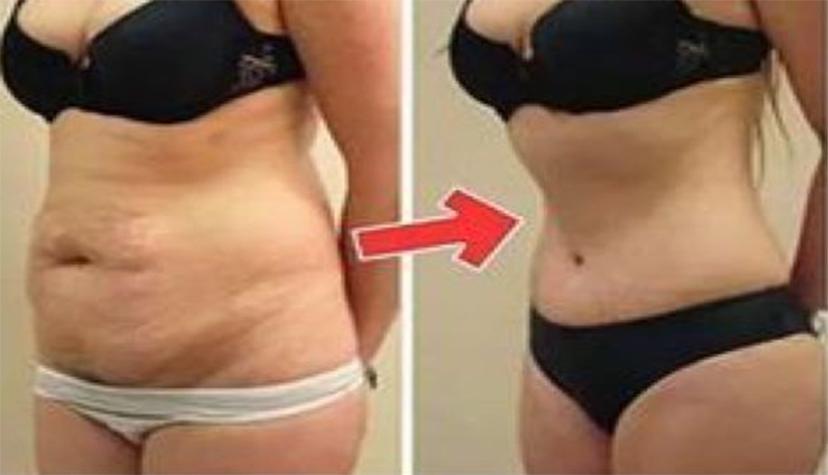 perdre du poids après le côlon brûler la graisse du ventre plus rapidement