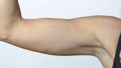 Comment maigrir des bras rapidement : mode d'emploi (+ 6 exercices clés)