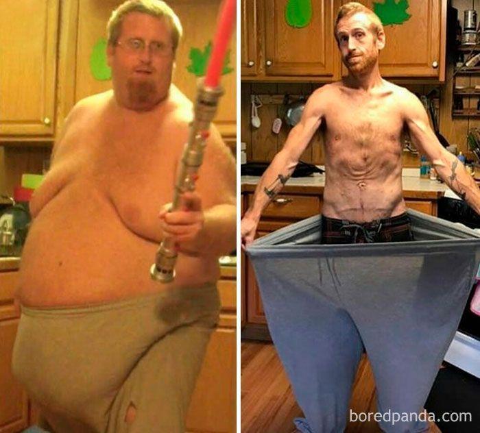 avant et après la perte de poids masculin perte de graisse topique au napalm