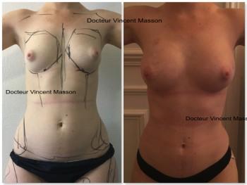 Est-ce que perdre du poids gâche le résultat du lipofilling des fesses ?