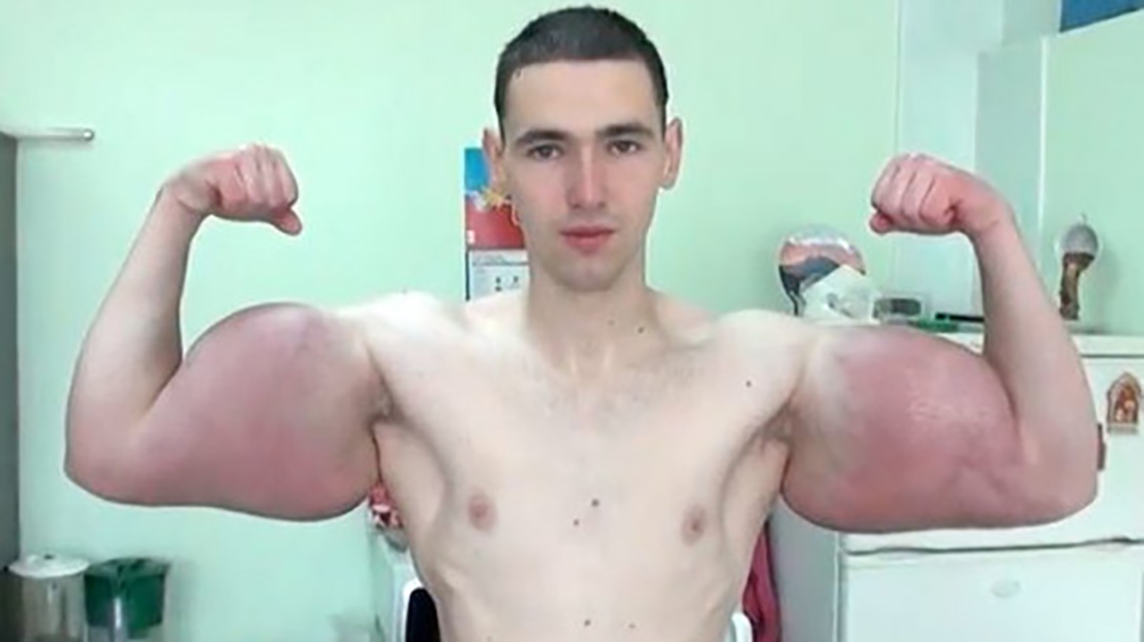 perdre mes gros bras