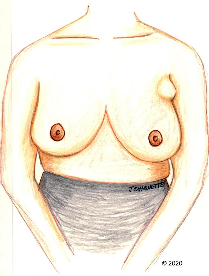 rétraction du mamelon après la perte de poids examen du brûleur de graisse alpha a6