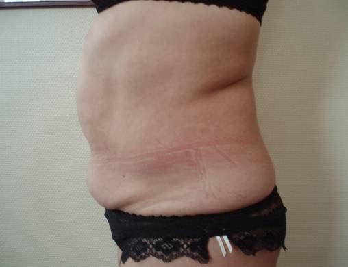 perdre du gras dorsal en 2 jours