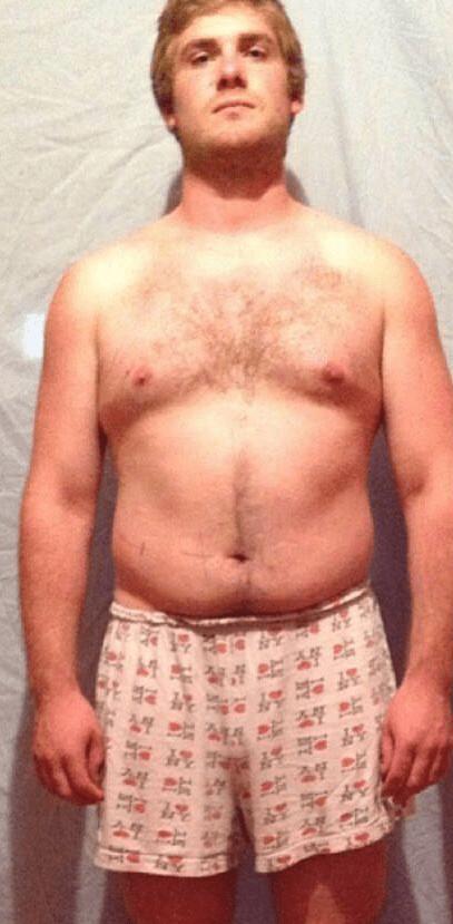 diane 35 effets secondaires perte de poids je suis gros, jai besoin de perdre du poids