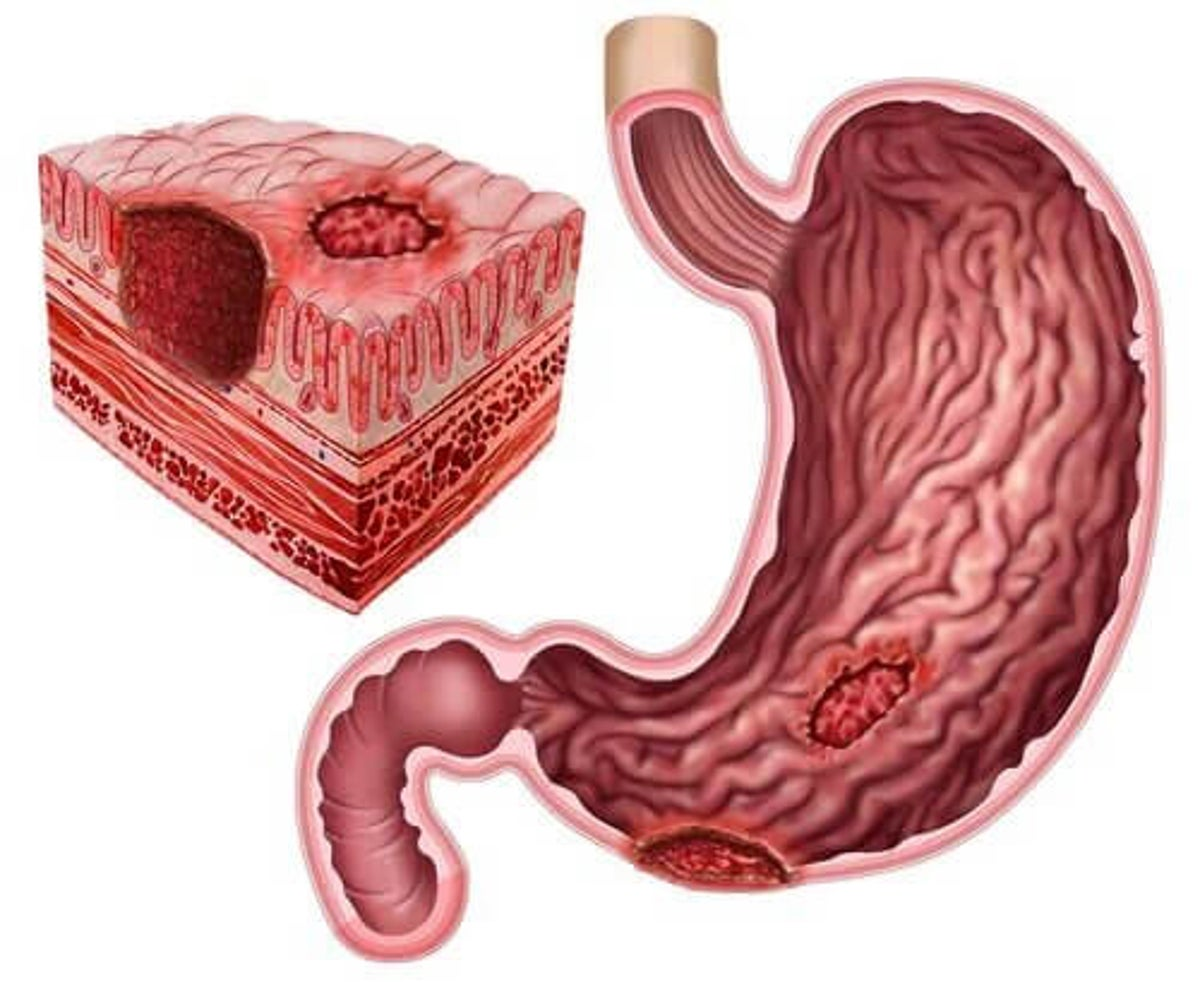 perte de poids due à un ulcère peptique